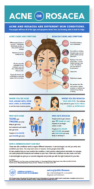 acne-or-rosacea-infographic-thumbnail.jpg