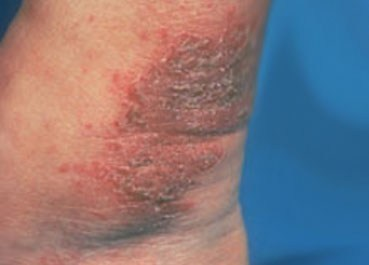 Nummular-Dermatitis-symptoms-Ankle.jpg