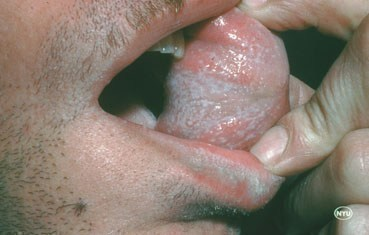 lichen-planus-symptoms_oral.jpg